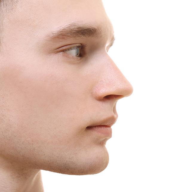 After-Facial